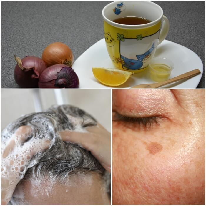 Propiedades curativas y saludables de la cebolla morada-roja